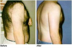 men-laser-hair-removal